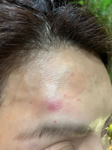 Are uneven bumps and bruising normal after fillers and Botox? (photo)