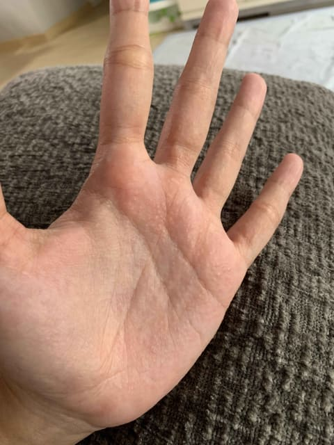 How are small blisters on the palm typically treated? (photo)