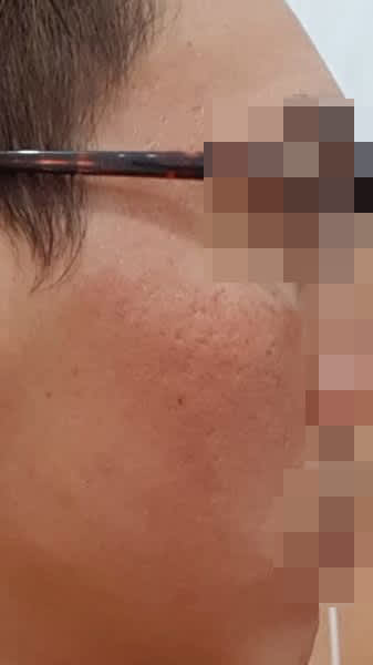 How effective is 30% versus 100% TCA CROSS for acne scars? (photo)