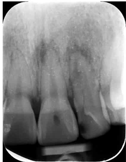 How long does root canal treatment at a dental clinic usually last? (photo)