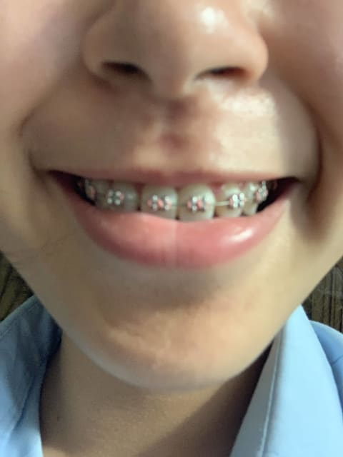 picture of smile with braces