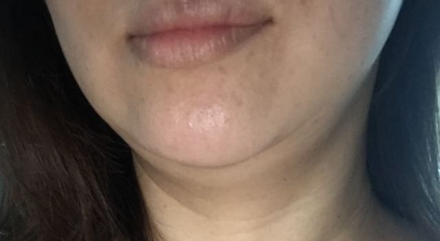 Is it possible for double chin removal with Coolsculpting to cause wrinkles? (photo)