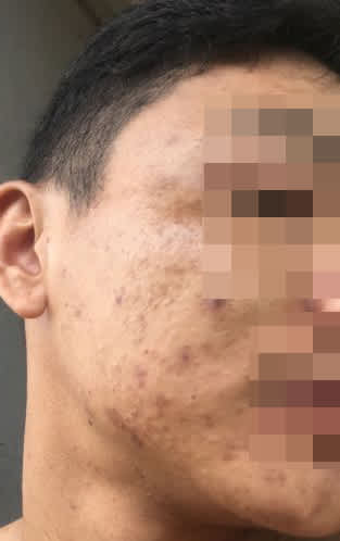 What is the best solution for active cystic acne and scarring? (photo)