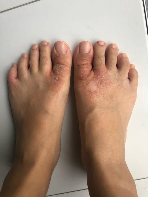 Rash on foot