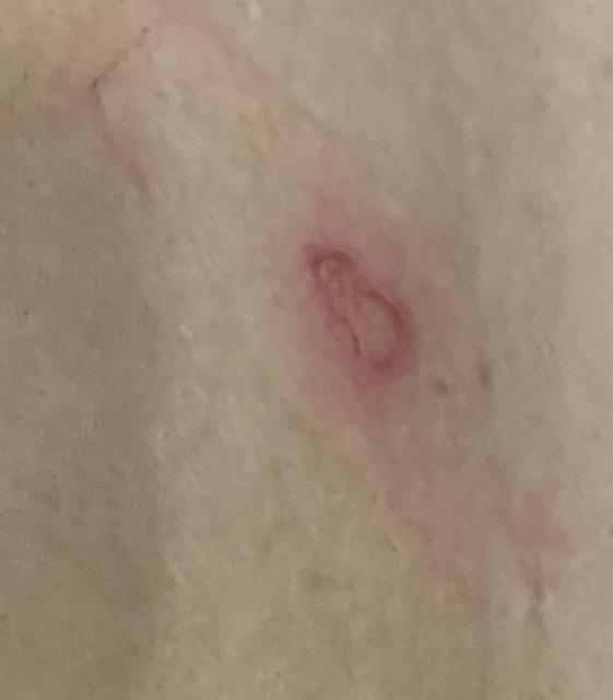 Can aloe vera gel help with torn skin? (photo)