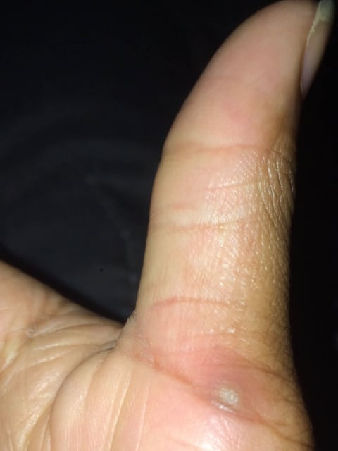 Splinter in thumb