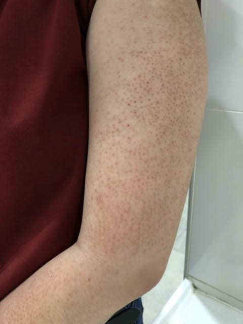 Can severe Keratosis Pilaris scars be completely removed by laser