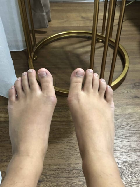 Which kinds of clinics or hospitals provide medical consultations for bunions in Singapore? (photo)