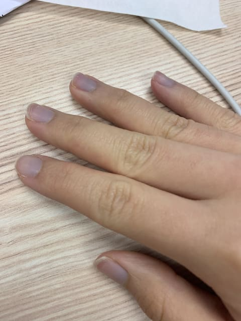 Should I be concerned if my nails turn purple whenever I am feeling cold?