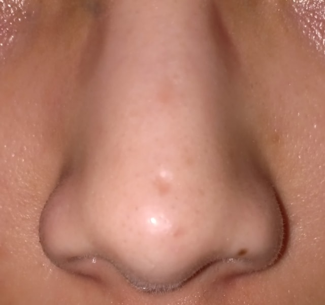 Pitted chicken pox Scar tip of nose