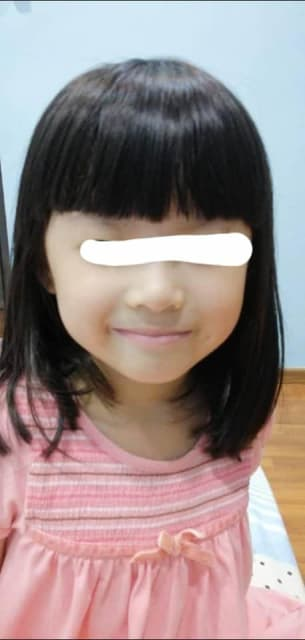 5 year old with underbite front