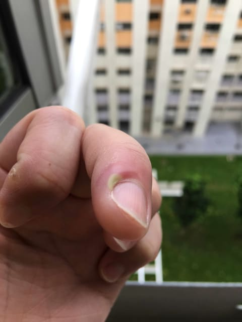 What could possibly cause my finger to turn green and painful? (photo)