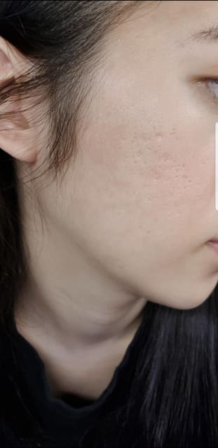 Mild and moderate pit mark acne scarring on cheeks