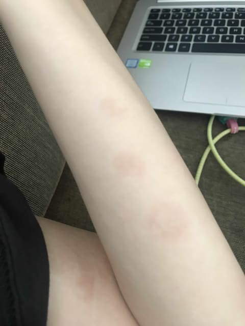 What could have caused these patches to develop on my arms?