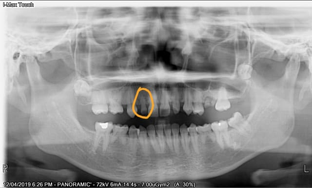 When is it advisable to replace my baby tooth with an implant?