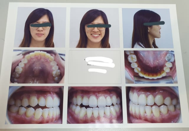orthodontic treatment for crooked teeth