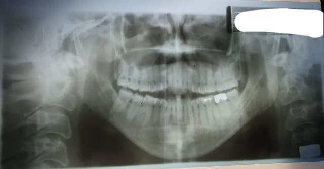 Can braces be combined with jaw surgery for better results and to shorten treatment time? (photo)