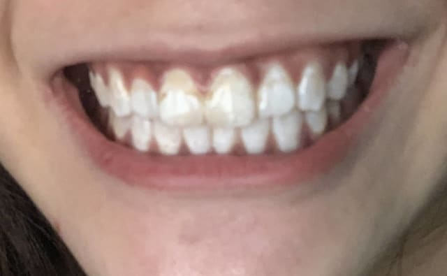 How do clear aligner brands that achieve cosmesis by only straightening visible crooked front teeth compare against standard orthodontics braces treatment? (photo)
