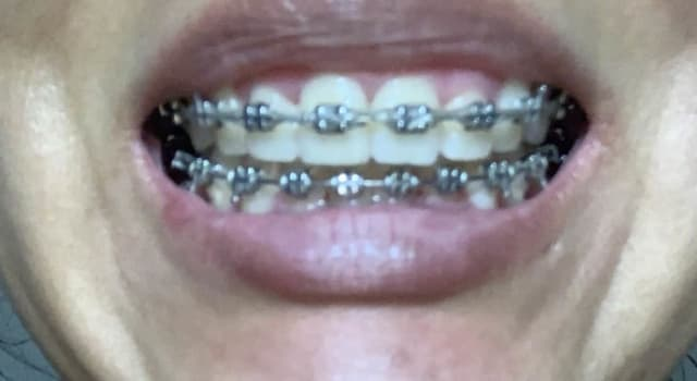 front teeth overbite with braces