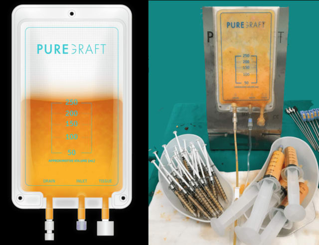 Puregraft processed fat is bright yellow with the impurities removed