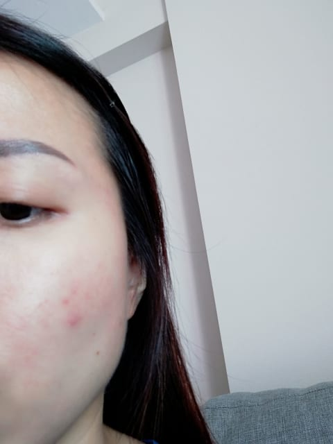 Acne rosacea red cheeks small bumps