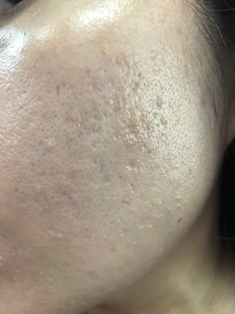 For moderate acne scars, how do doctors determine how much improvement is realistically possible as I wish to get rid of them completely? (photo)