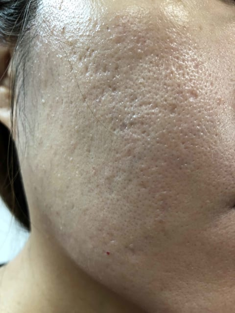 Moderate acne scar pitting and box car scars