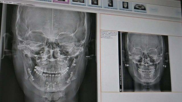 Xray jaw bone plates and screws
