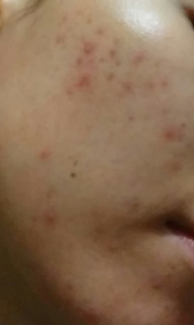PIE and mild acne on Asian skin