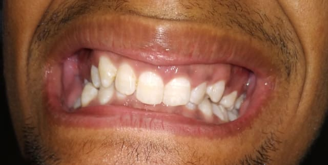 Crooked teeth and misaligned jaw