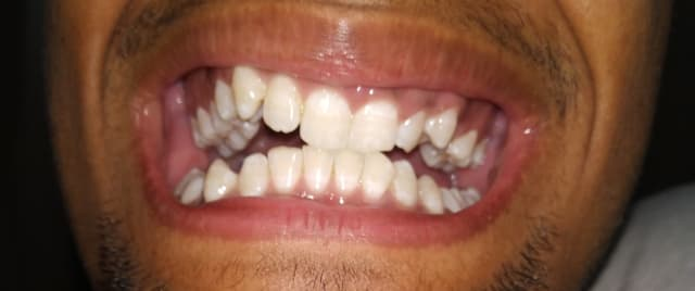 What are the implications if I undergo braces treatment without jaw surgery, even though the latter has been recommended to me to fix a misaligned jaw? (photo)