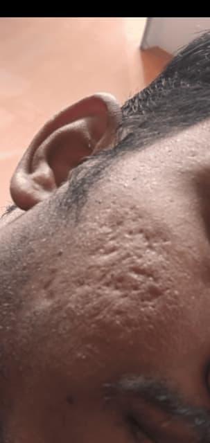 Ethnic skin deep acne scar