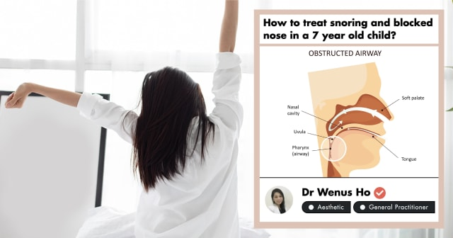 Sleep Apnea Treatment in Singapore: A GP's Take on Snoring (2020)