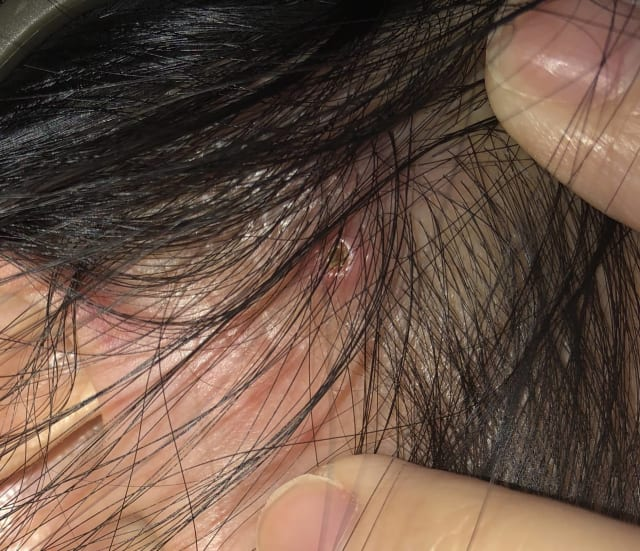 What are the treatment options other than fusidic acid (Fucidin) for painful scalp abscesses? (photo)