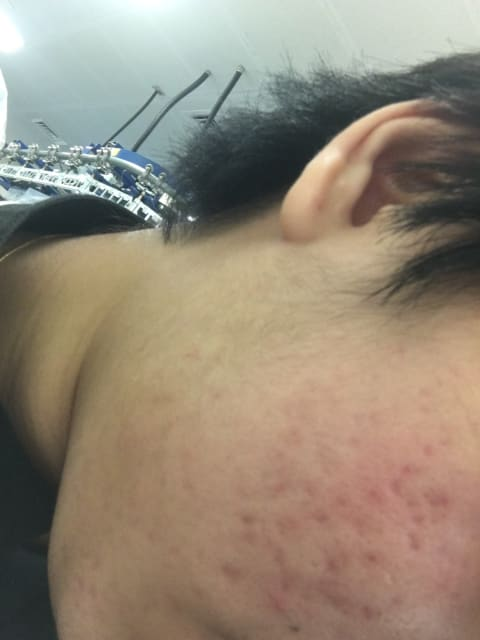 What are the possible reasons for prolonged skin redness and itch after Action II fractional laser treatment in patients who have post-inflammatory erythema? (photo)