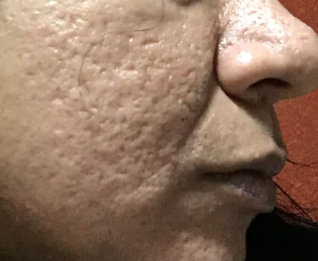What are recommended treatments for severe acne scars if derma rollers and CO2 fractional lasers are ineffective? (photo)