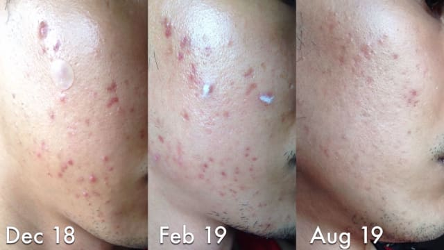 What are the possible complications if both acne treatment and acne scar treatment are done in the same period? (photo)