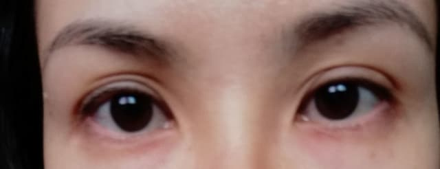 What is the best treatment to address awkward eyelid folds? (photo)