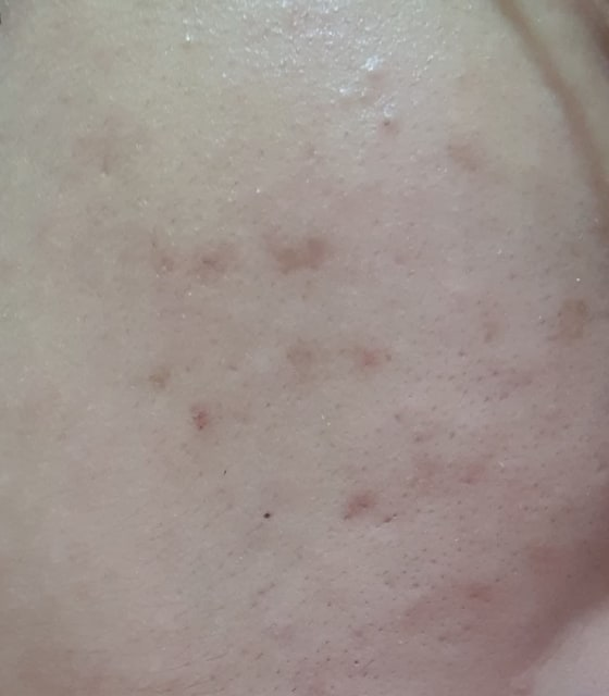 How do I decide which OTC acne treatment such as benzoyl peroxide, salicylic acid, AHA, sulphur and resorcinol is the best for me? (photo)
