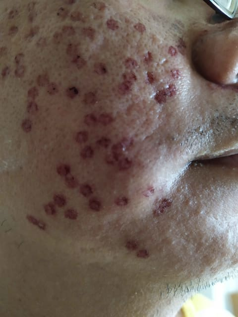 How does pico laser treatment differ for people with a combination of acne scars as compared to treating a single type? (photo)