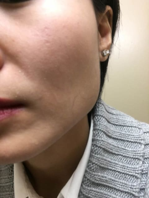 Which non-surgical treatments are recommended to treat depressed scars? (photo)