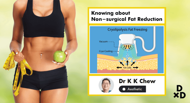 The Essential Guide To Non-surgical Fat Reduction In Singapore (2019)
