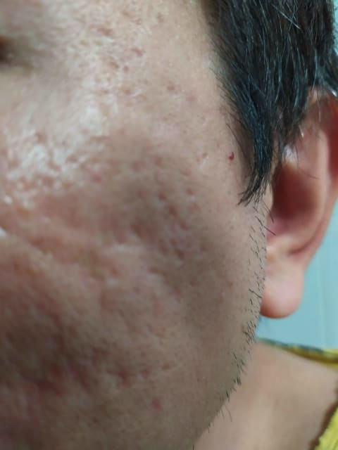 How does chemical reconstruction by trichloroacetic acid (TCA) work to reduce the visibility of acne scars? (photo)
