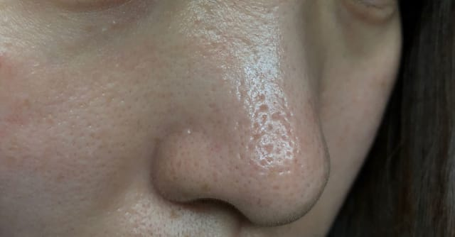 What are some treatments for deep acne scarring and enlarged pores on the nose? (photo)