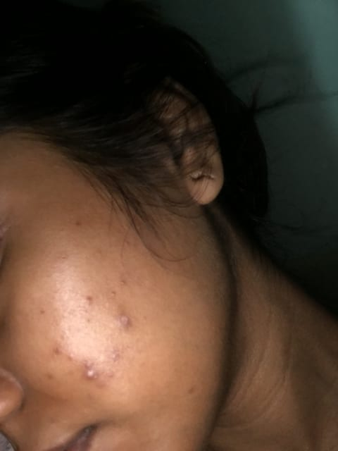How effective is Differin gel (adapalene) in treating severe cystic acne? (photo)