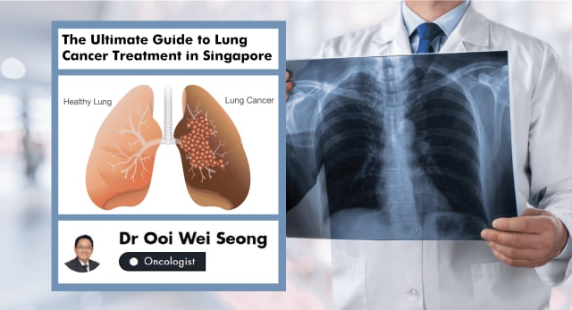 An Oncologist's Ultimate Guide to Lung Cancer Treatment in Singapore (2019)