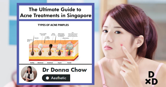 The Ultimate Guide to Acne Treatments in Singapore (2019)