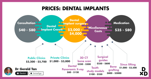 The Ultimate Guide To Dental Implants in Singapore (2019)