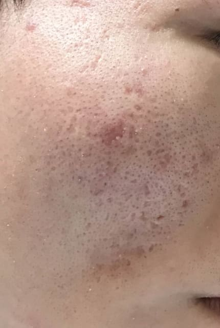 How can severe acne scars be further improved if I am currently on TCA Cross treatment? (photo)