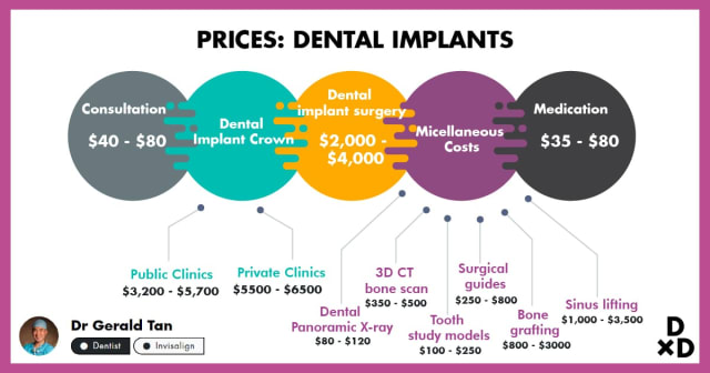 The Ultimate Guide To Dental Implants in Singapore (2020)
